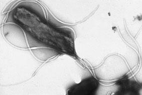 חיידק בקיבה הליקובקטר